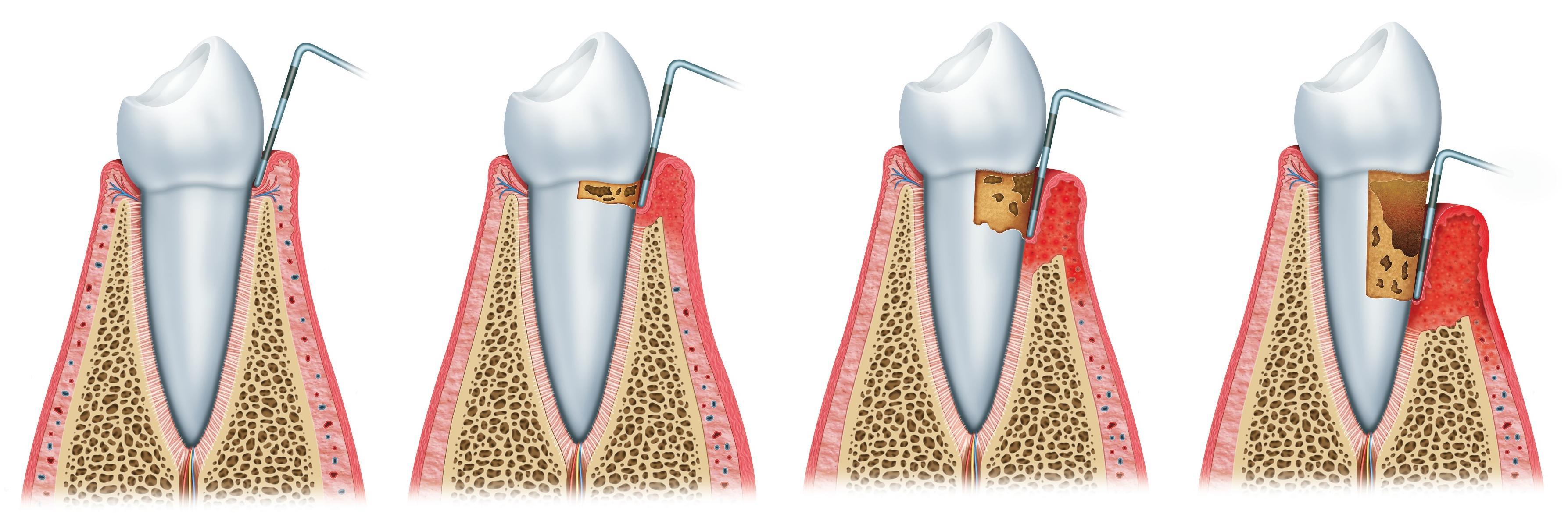 periodoncia ·  www.edentodontologia.com