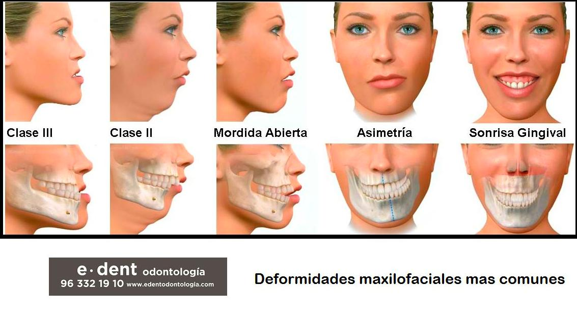 Las deformidades maxilofaciales más frecuentes. Ortodoncia adultos Valencia.