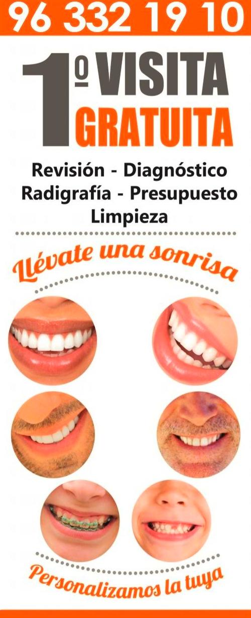 Implante dental en Valencia