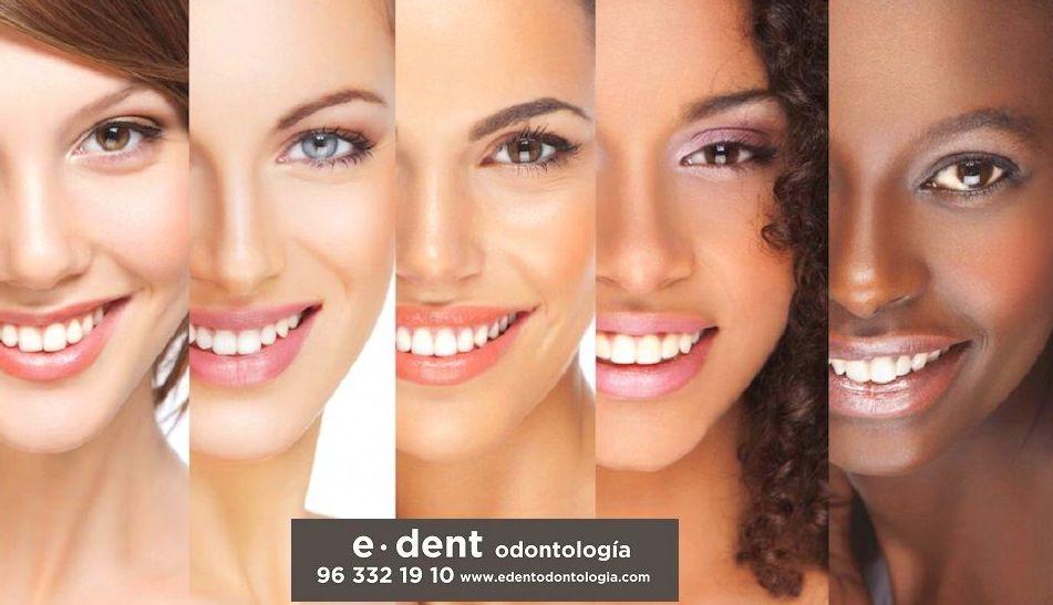 Blanqueamiento dental Valencia
