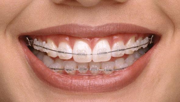 Ortodoncia estética en Valencia
