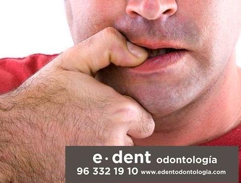 Onicofagia, la mala costumbre de morderse las uñas. Implantes dentales en Valencia.