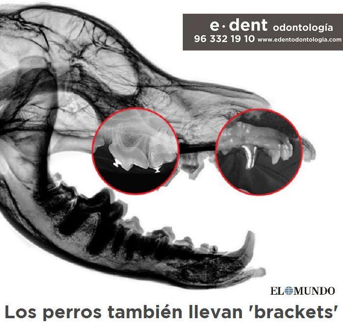 Ortodoncia adultos Valencia