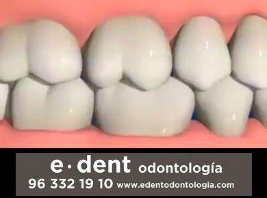 Reconstrucción dental Valencia