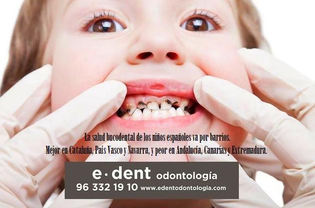 La salud bucodental de los niños españoles va por barrios. Ortodoncia infantil en Valencia.