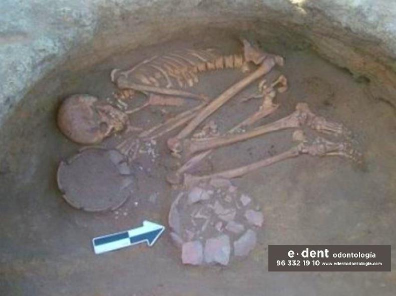 Placa dental de 7000 años