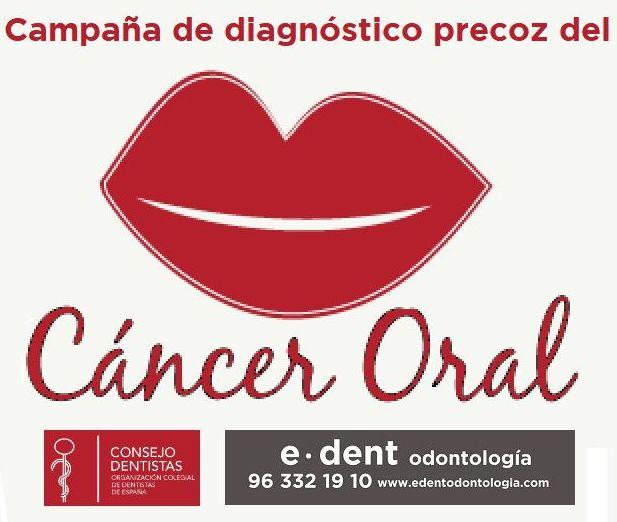 Clínica dental Valencia - Implantes dentales Valencia
