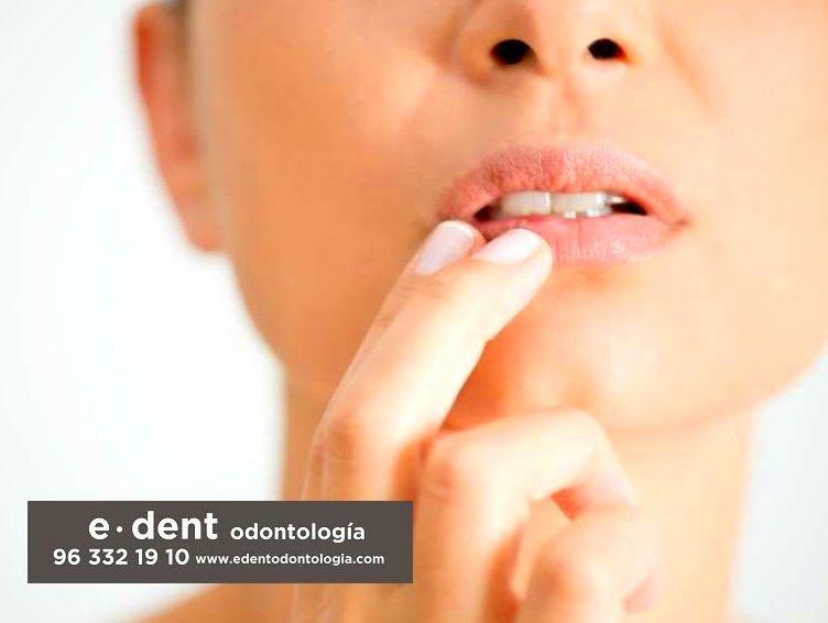 Implantes dentales Valencia / Clínica dental Valencia
