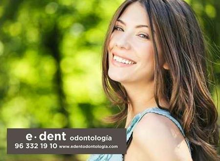 Tratamientos dentales en Valencia