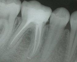 rx endodoncia  ·  www.edentodontologia.com