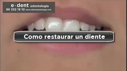 Reconstrucción dental Valencia }}