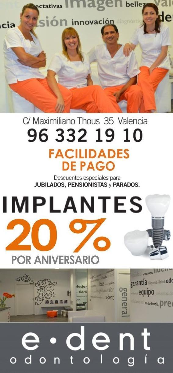 Implantes dentales en Valencia 20 % descuento por aniversario e.dent odontología