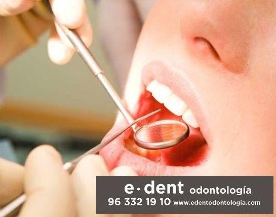 Higiene dental y prevención. e.dent odontologia - Valencia