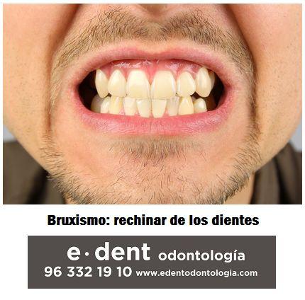 Bruxismo o rechinar de dientes