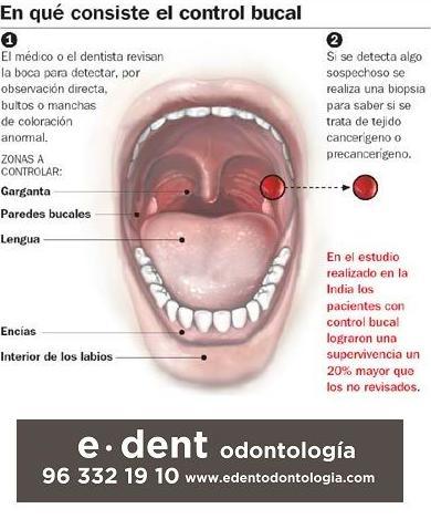 PREVENCIÓN DEL CÁNCER ORAL www.edentodontologia.com