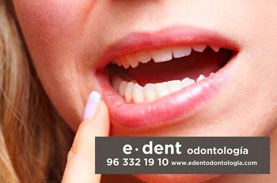 Odontología adultos Valencia