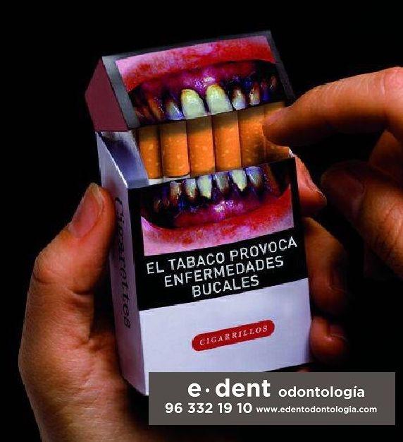 Limpieza dental Valencia / Limpieza bucal Valencia