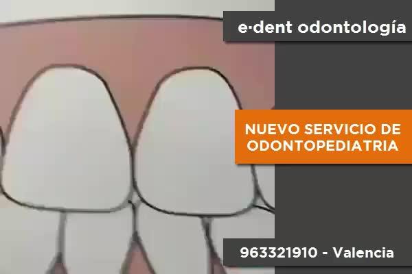 Odontopediatría en Valencia }}