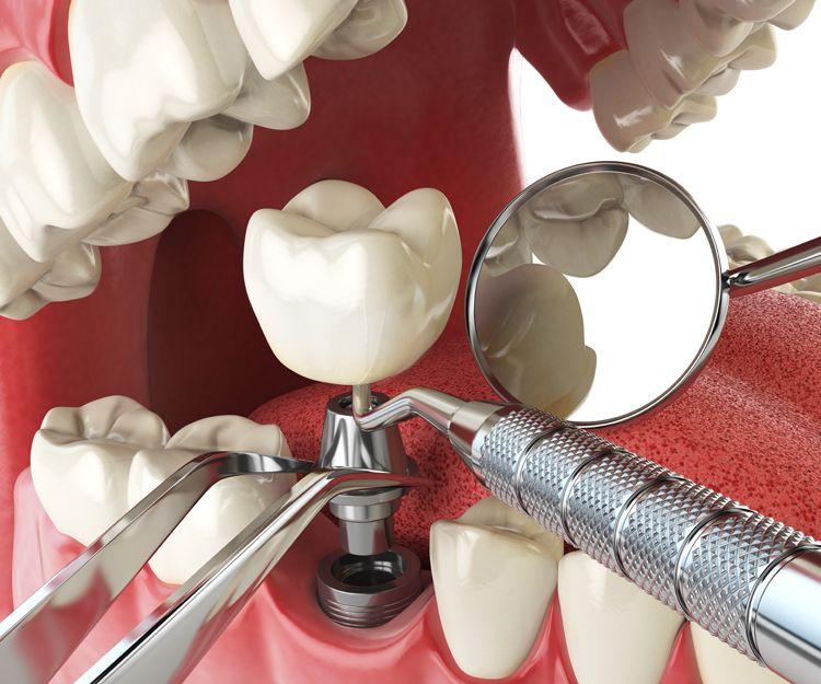 Especialistas en implantes dentales en Lleida