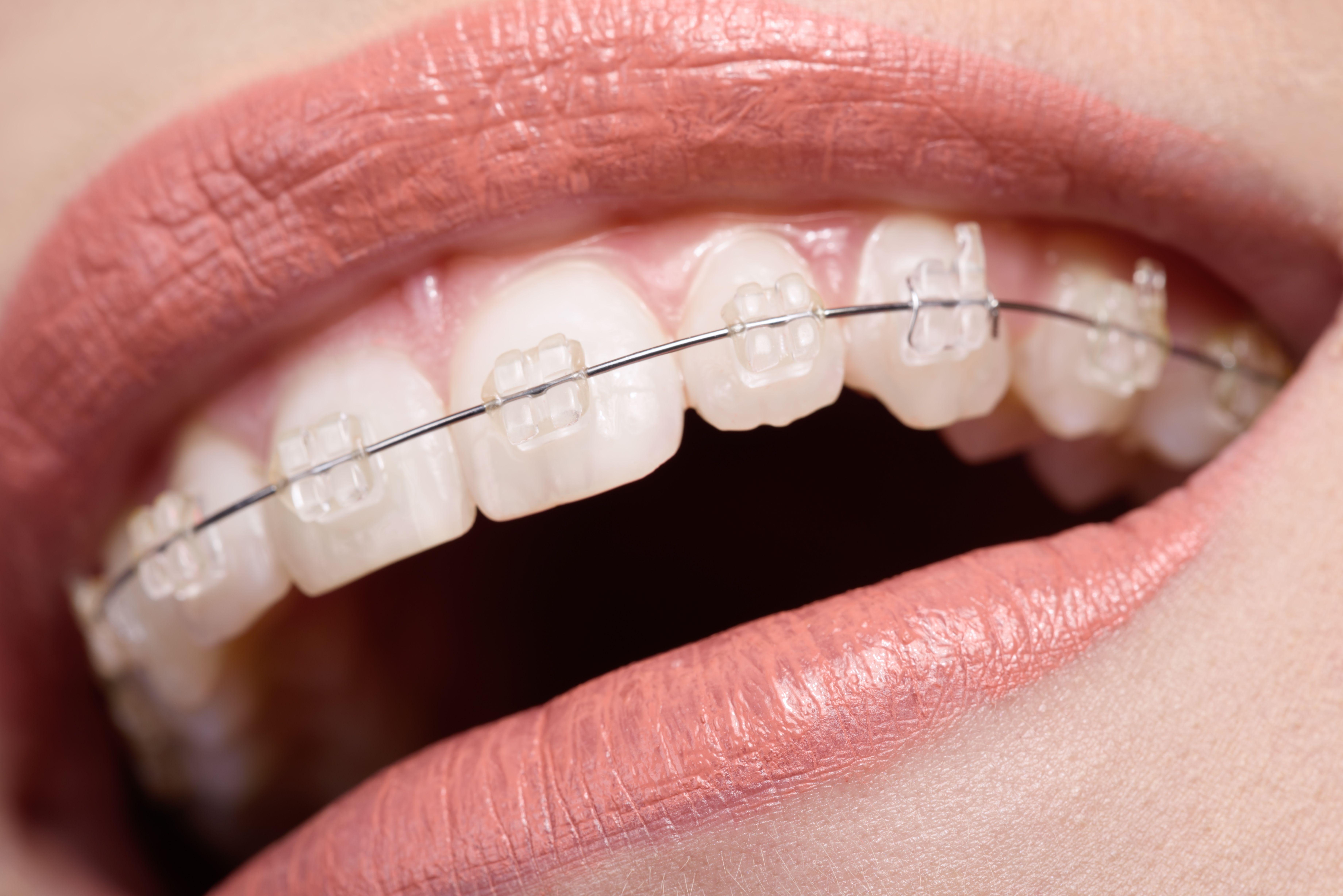 Ortodoncia: Servicios de Iessodent