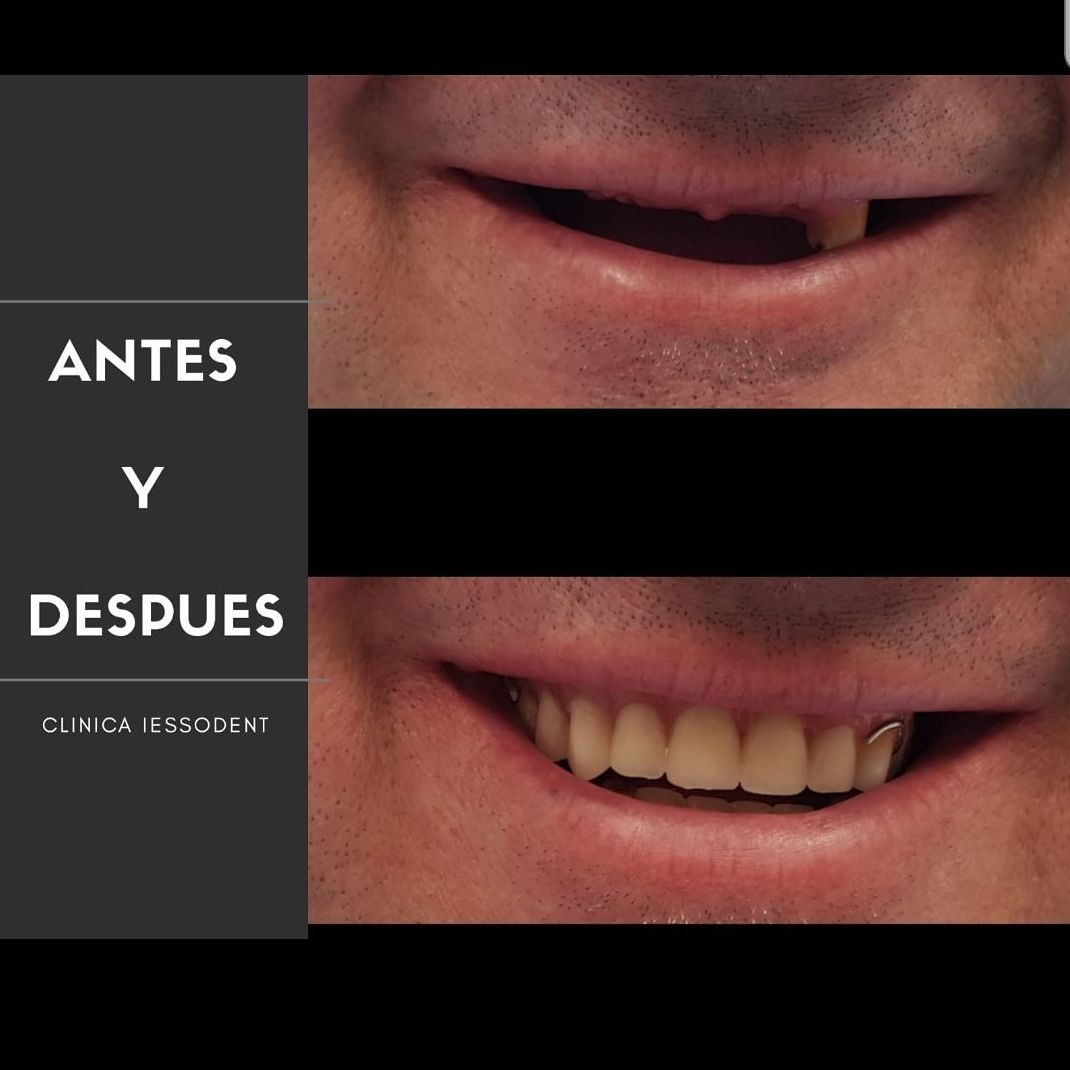 Foto 3 de Clínica dental en Guissona | Iessodent