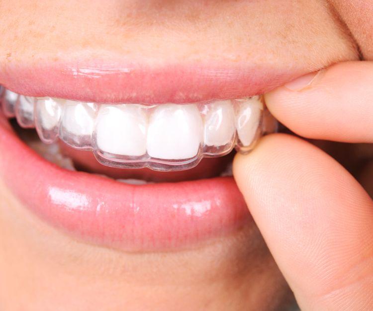 Especialistas en estética dental en Lleida