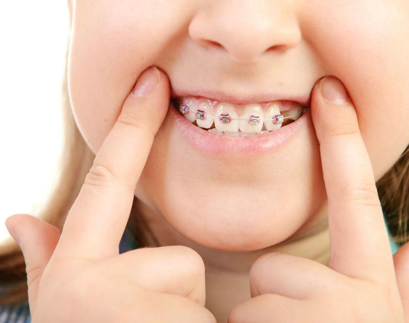 Odontopediatría: Tratamientos de Clínica Dental Xixón