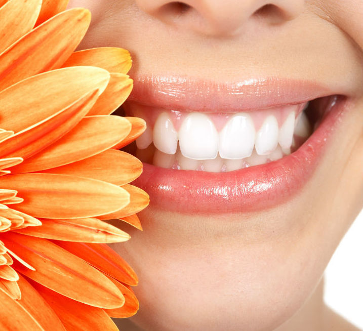 Blanqueamiento: Tratamientos de Clínica Dental Xixón