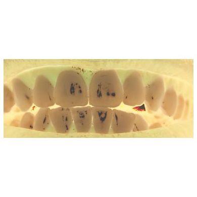 Prótesis dental : Especialidades  de Clínica San Francisco de Alcalá