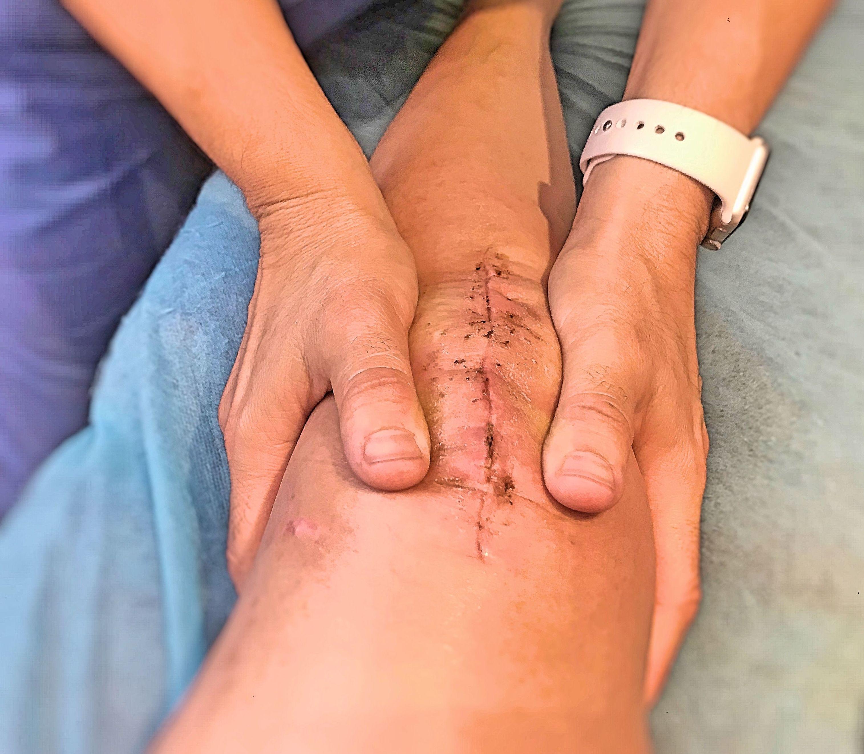 Foto 11 de Fisioterapia en  | Optima Fisioterapia