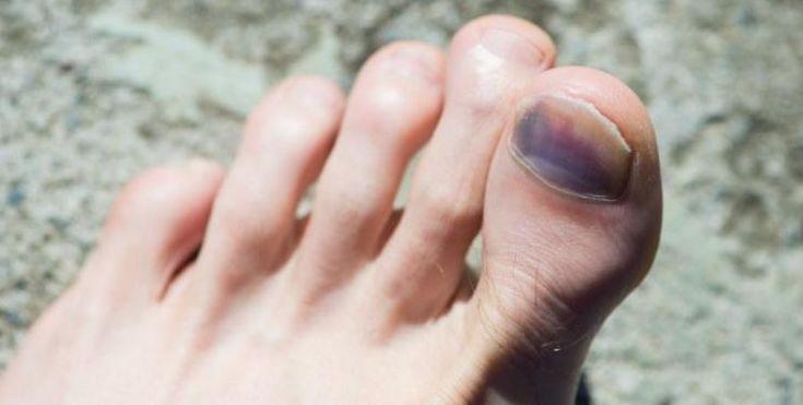 Tratamientos uñas negras Molina de Segura