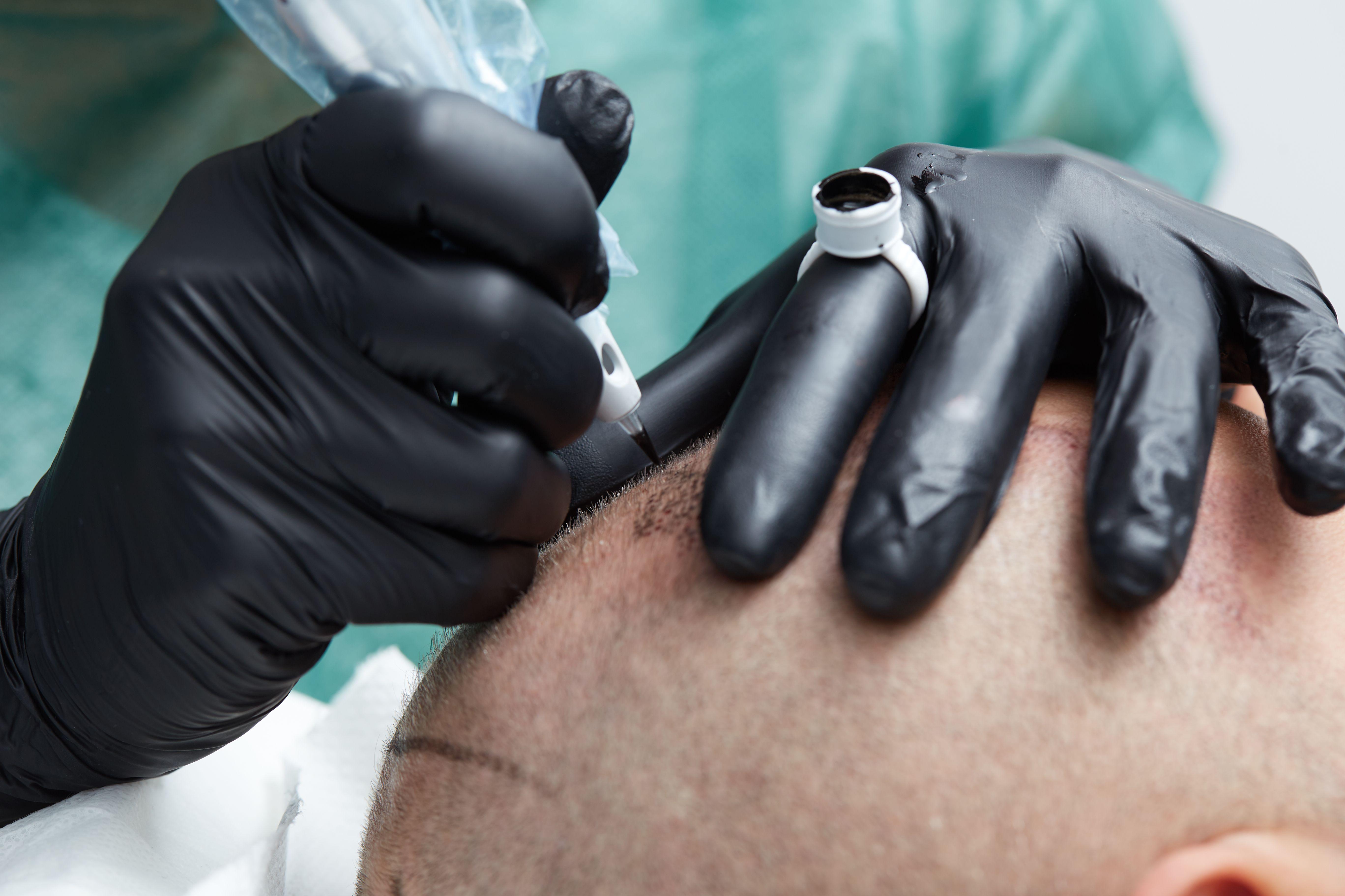 Tratamiento de alopecia en Barcelona