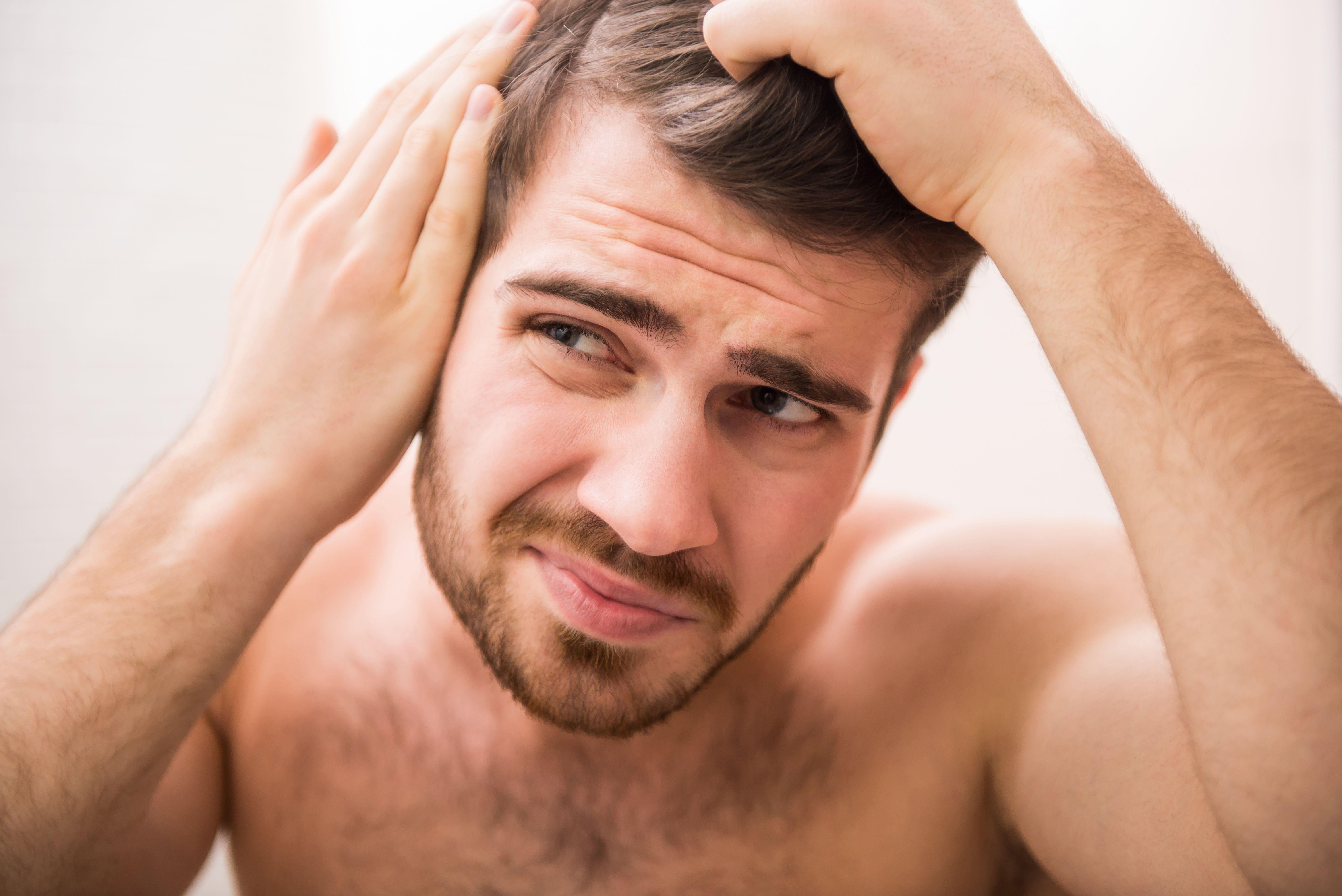 Alopecia tratamientos: Servicios de Clínica Vicario
