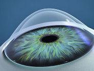 Desmitificar el miedo a las lentes rígidas