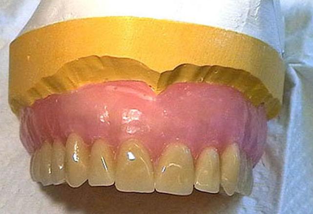 Prótesis dental fija: Tratamientos de Clínica Dental Dr. de la Torre