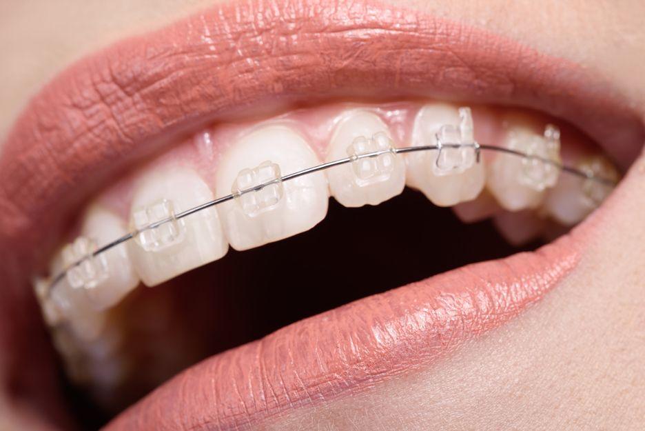 Ortodoncia estética en Rivas Vaciamadrid