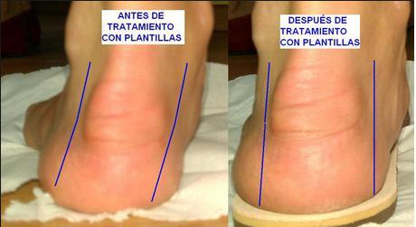 Foto 9 de Podólogos en Caldes de Montbui | Centre Podológic Caldes