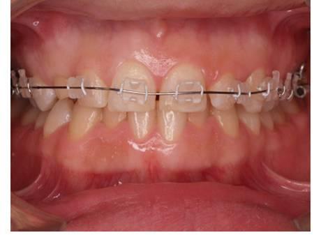 Ortodoncia: Tratamientos Dentales de Clínica Dental Dra. Silvia Conca Chiumello