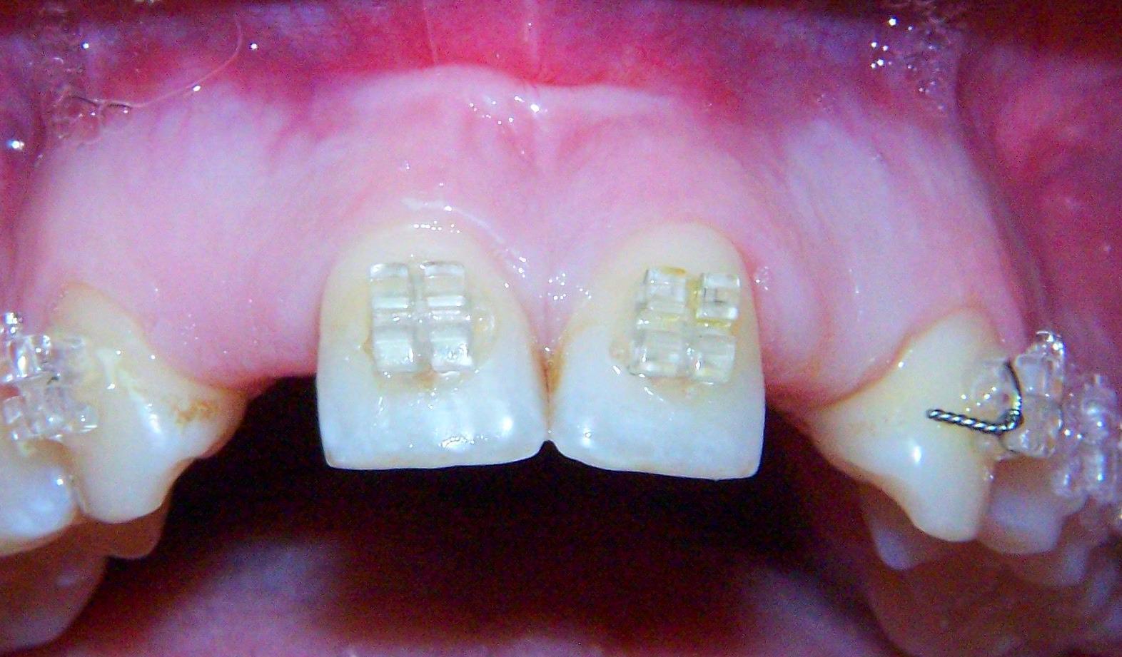 implantes en agenesia: Tratamientos Dentales de Clínica Dental Dra. Silvia Conca Chiumello