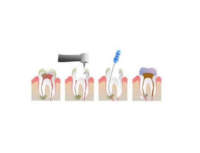 Endodoncia: Especialidades de Centre Odontològic Idzi