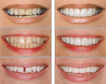 Carillas estéticas: Tratamientos dentales de Dental Llorens. Viché & Gutiérrez