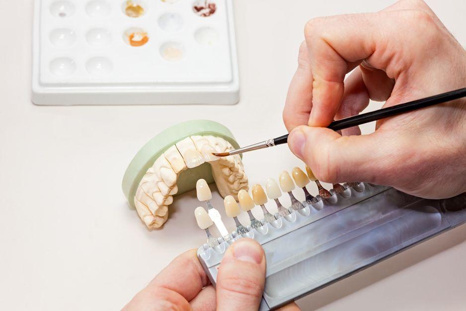 Productos para laboratorios y clínicas dentales en Sevilla