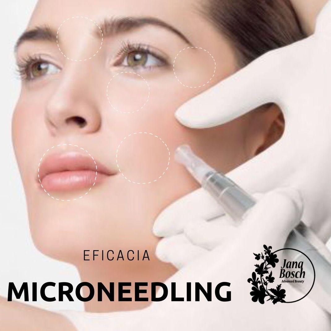 Microneedling o Dermapen: Tratamientos  de Jana Bosch Advanced Beauty