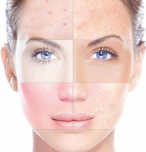 Tratamiento Facial Reparador Intenso After Sun: Tratamientos  de Jana Bosch Advanced Beauty