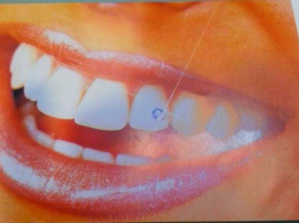 Precios piercing dental Murcia, Piercing dental brillante Murcia, Brillante dental Murcia, Skice Murcia, Piercing dental en Murcia, Piercing dental precios Murcia, Ofertas brillantes dentales Murcia, Piercing Murcia, Clinica dental Murcia, Dentista Murcia
