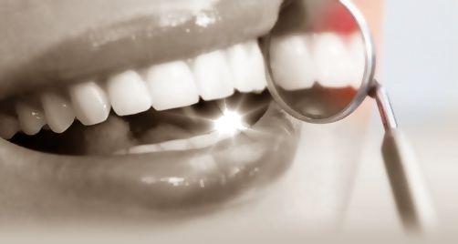 Estética dental: Tratamientos de Urgencias dentales Clínica  Ángel Samaniego