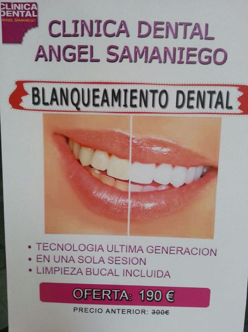 blanqueamiento dental Murcia, Clinicas dentales Murcia, Dentistas Murcia, presumir de sonrisa