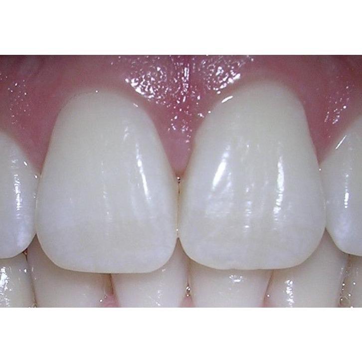 Blanqueamiento dental de luz fría: Tratamientos de Urgencias dentales Clínica  Ángel Samaniego