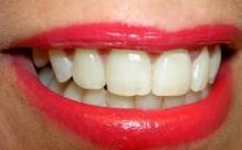 Blanqueamiento dental Murcia, Piercing dental Murcia, Clinica dental Murcia, Dentista Murcia }}