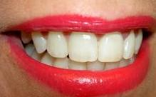 Blanqueamiento dental Murcia, Get White Smile in Murcia